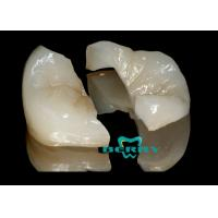 Wholesale Metal Pure Titanium Alloy Composite Dental Crown , Composite Tooth Veneers from china suppliers