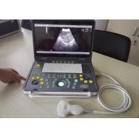 "Wholesale 15"" LED USB Laptop Digital Ultrasound Machine With Multi-frequency Probes from china suppliers"