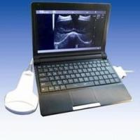 "Wholesale 10.1"" TFT LCD Ultrasound Scanner with Convex Linear Transvaginal Micro Convex Probe from china suppliers"