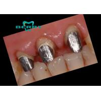 Wholesale Precious Dental  PFM  Crown Palladium Silver Dental Post and Core from china suppliers
