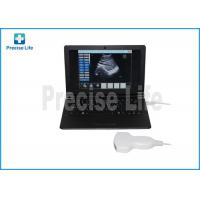 Wholesale B type portable Hospital Medical Ultrasound Machine Laptop PC base from china suppliers