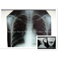 Wholesale Digital Medical X Ray Dry Film 14 x 17inch Health Imaging Radiographic Film from china suppliers