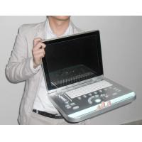Wholesale Ultrasound Color Doppler Portable Laptop B ultrasound scanner imaging system DEVICE from china suppliers