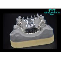 Wholesale Noble Non-Toxic Titanium Partial Dentures Framework Excellent Conformance from china suppliers