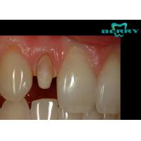 Wholesale FDA Ceramic Dental Crowns Restoration Good Biocompatibility from china suppliers
