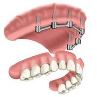 Buy cheap Removable Prosthetic Implant Overdentures from wholesalers