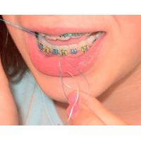 All About Arch Wires(HTY-SMART)